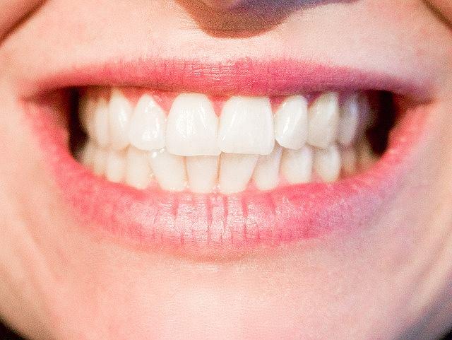 s-teeth-1652976_640